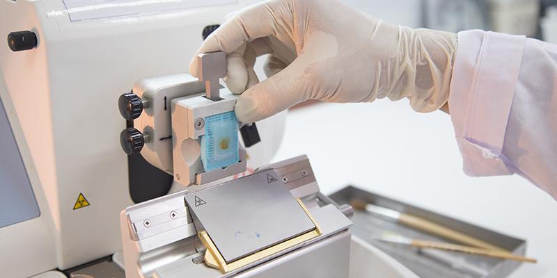 L'esecuzione di una biopsia per tumori alla prostata con tecnica rmn fusion